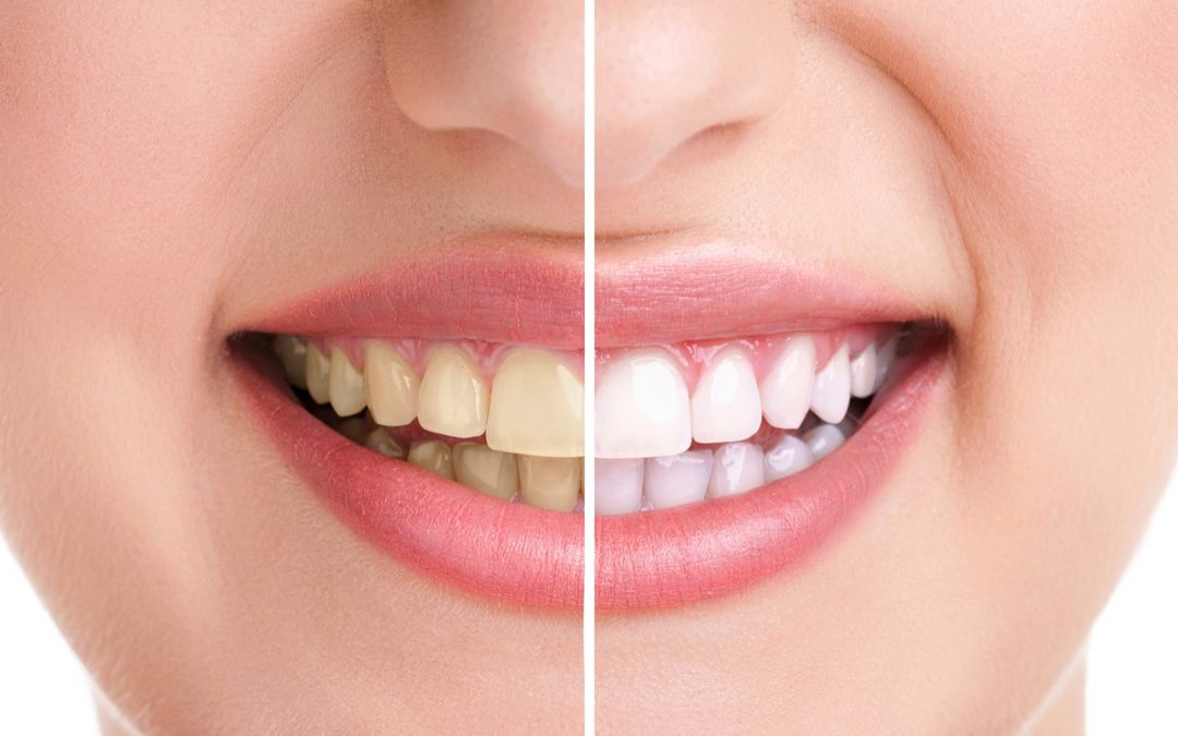 4 aliments qui blanchissent naturellement les dents